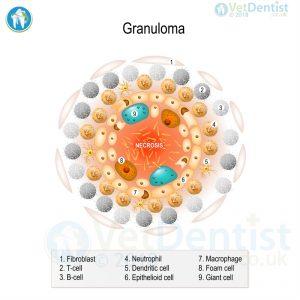 NTM Granuloma