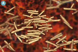 Non-Tuberculous Mycobacteria